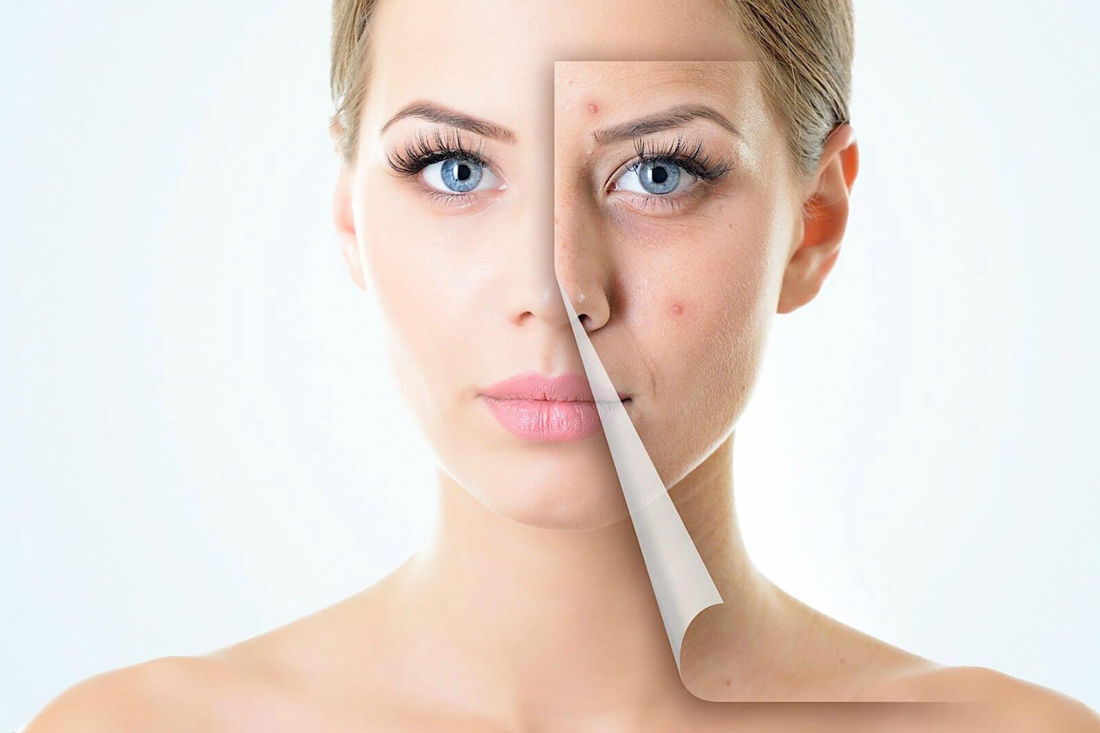 Хронический тонзиллит (осложненные формы) как причина кожных заболеваний