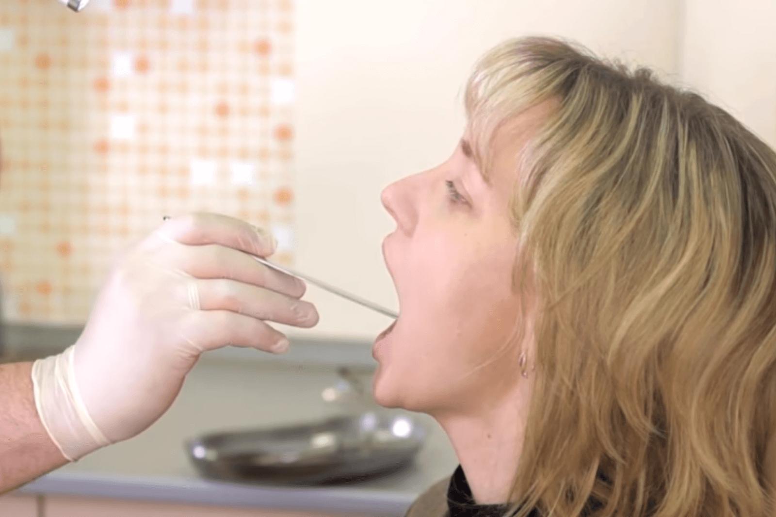 Криодеструкция миндалин поможет вылечить хронический тонзиллит у детей
