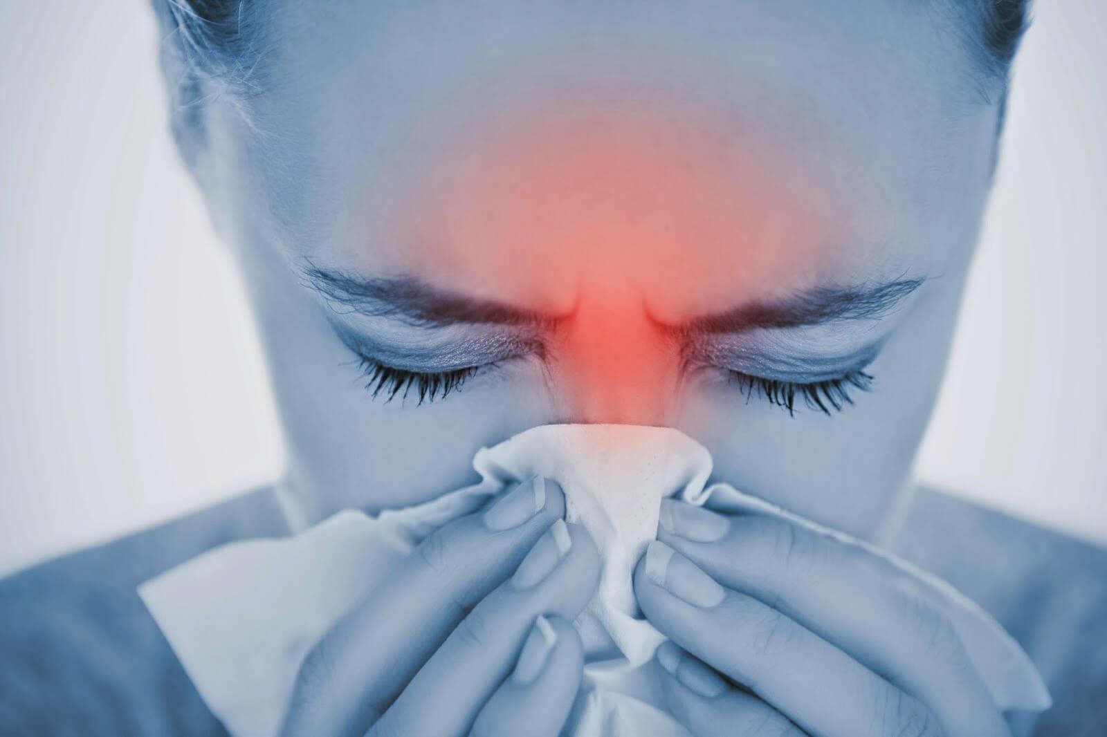 Воспаление основной пазухи — хронический сфеноидит